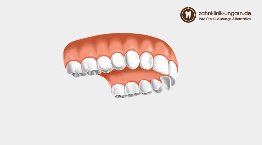 Ohne gaumenplatte zahnprothese Bester Zahnersatz